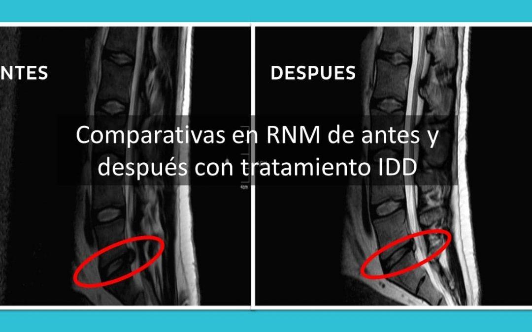 Comparativas en imágenes de resonancia magnética del antes y después con IDD Therapy.